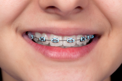 Kids Orthodontics